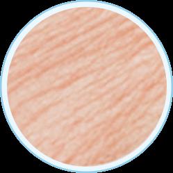 Trastornos de la pigmentación (manchas)